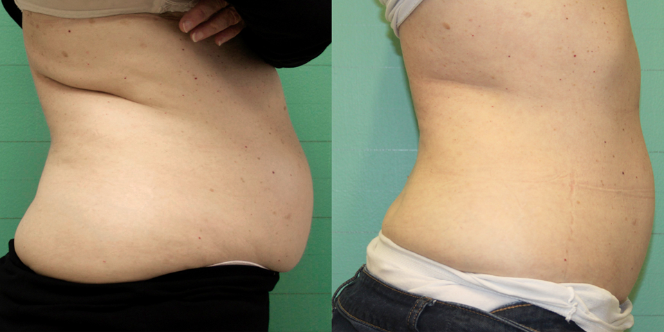 Fat Reduction -