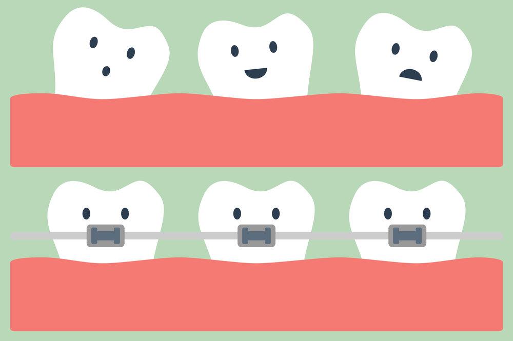 Orthodontics_shutterstock_320919188.jpg