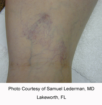 Leg vein before.jpg