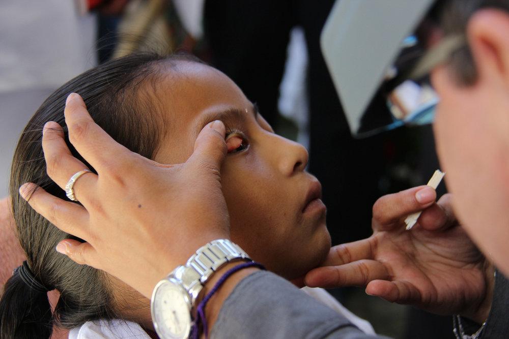 Treating trachoma