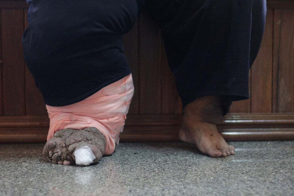 A case of lymphatic filariasis. photo:  MintZaa/shutterstock