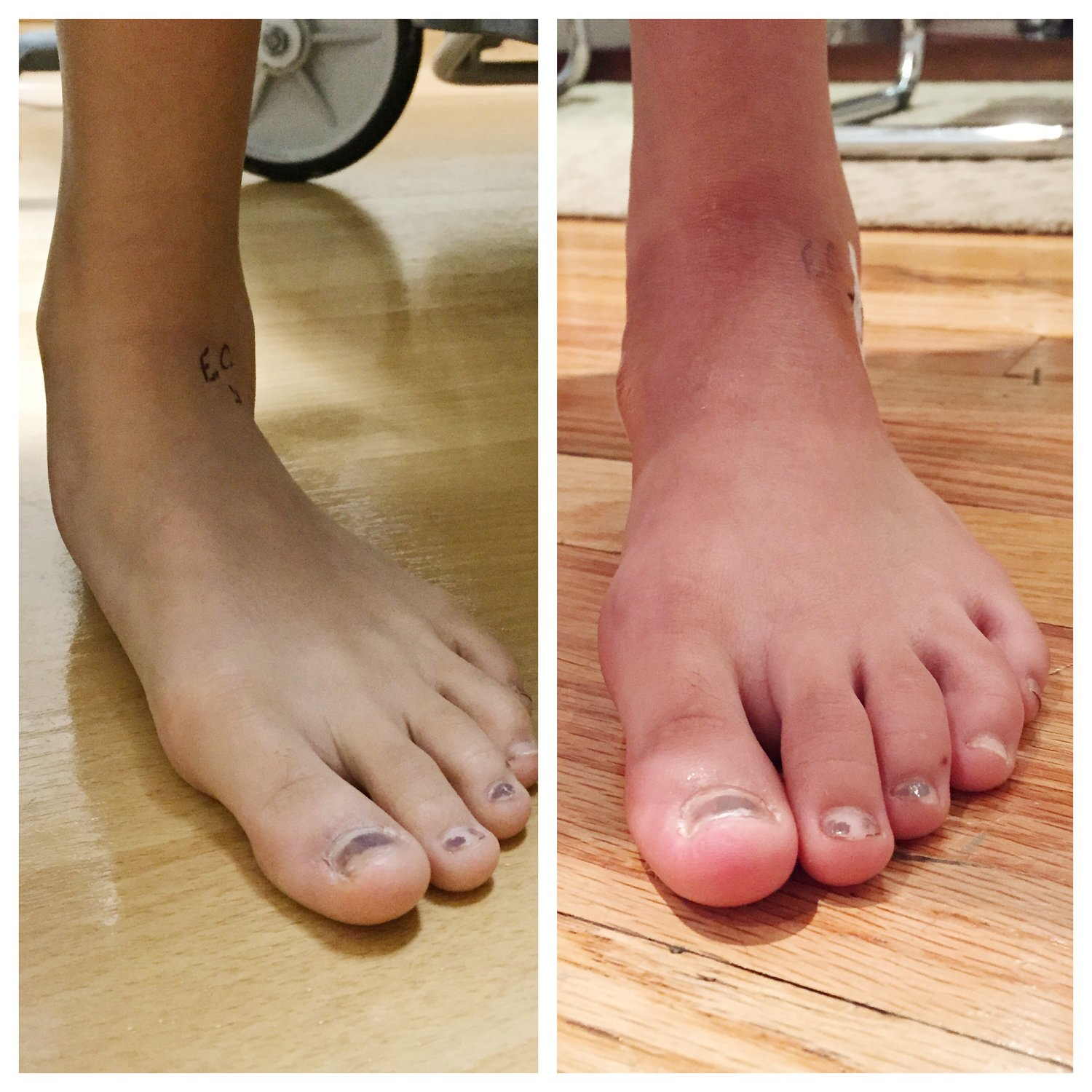 Correcting a Flexible Pediatric Flat Foot to Avoid Adult Bunions ...