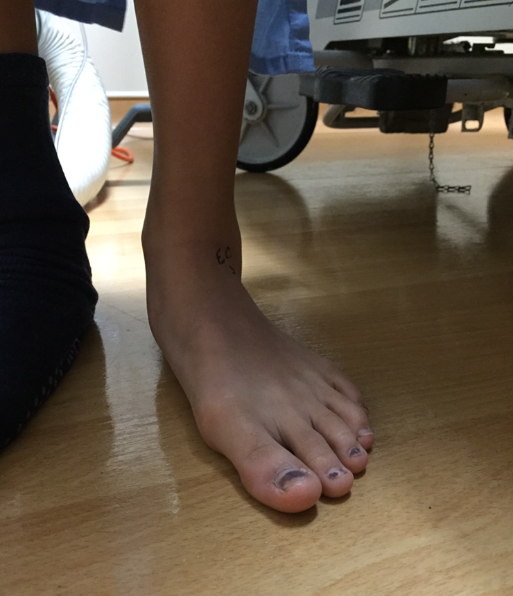 Pre-operative flatfoot. Notice how the forefoot is abducting from the midline, the arch is collapsed and a bunion is forming.