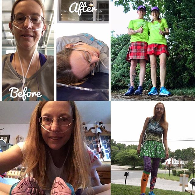 Our #RTYselfie winner today is @runningono2!! Mary suffers from a rare disease called Primary Ciliary Dyskinesia (PCD), which requires her to wear supplemental oxygen. She's also a total selfie star!! . . . #rtyselfie #runtheyear #RTY2017 #12MonthlyChallenges with @karagoucher