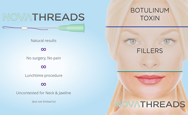 PDO threads can really be inserted anywhere but is especially great for challenging areas like a sagging neck, jowls and peri-oral lines.