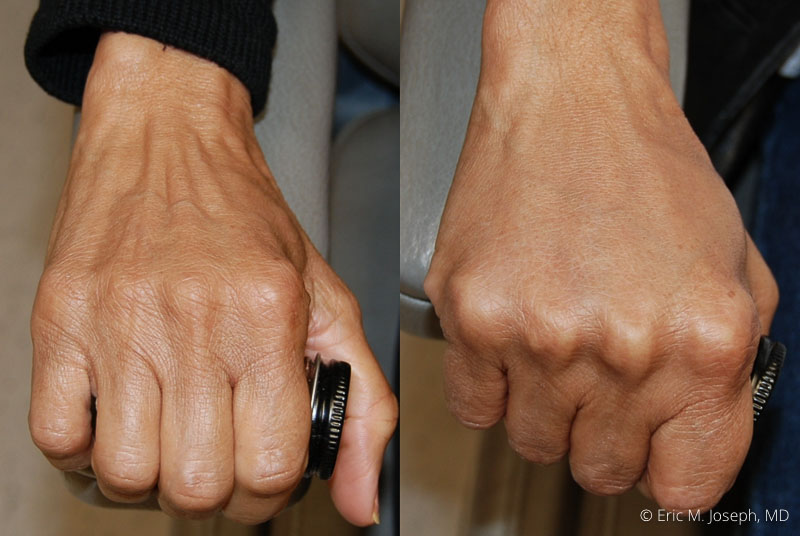 HandRejuvenation-0001.jpg