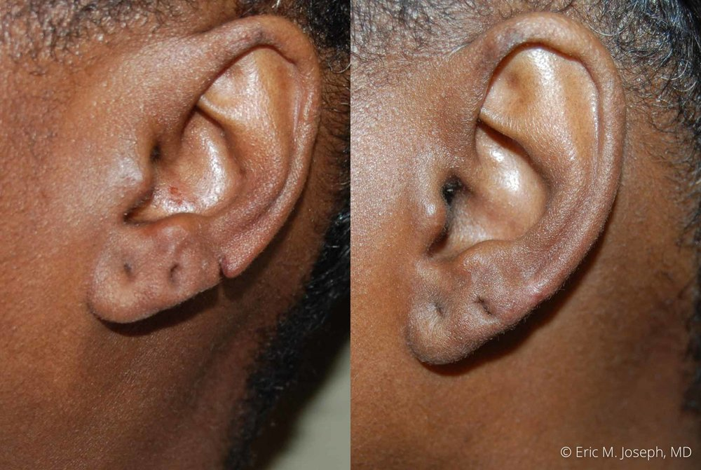 earlobe-revision-nj-0012.jpg