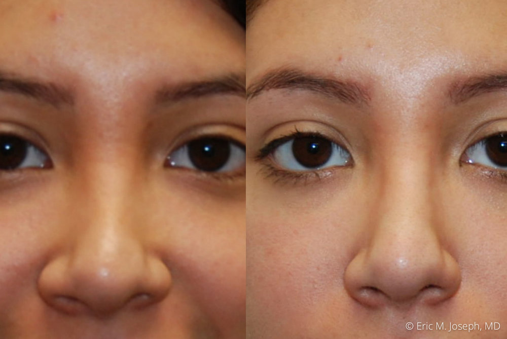 non-surgical-rhinoplasty-nj-nyc-0050.jpg