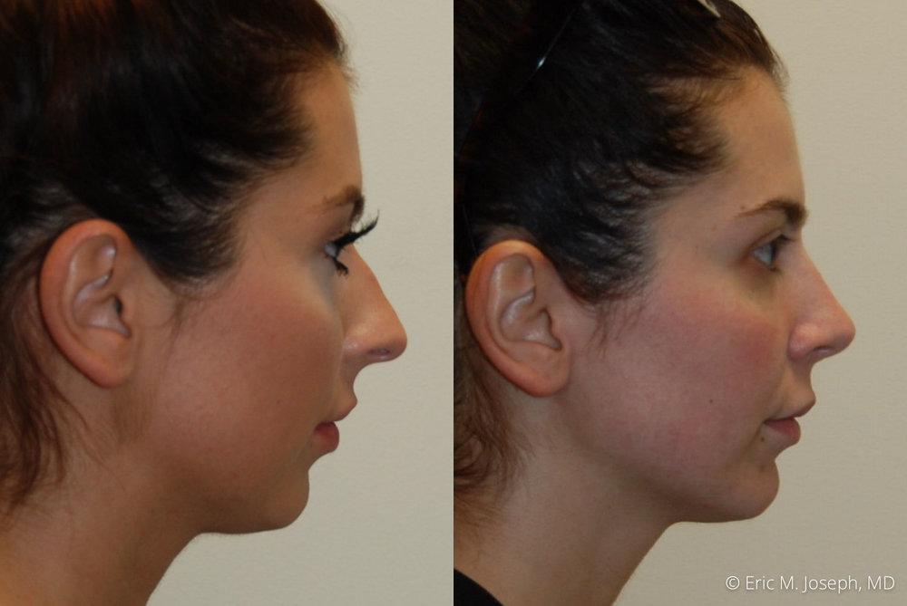 rhinoplasty-nj-nyc-nose-job-0373.jpg