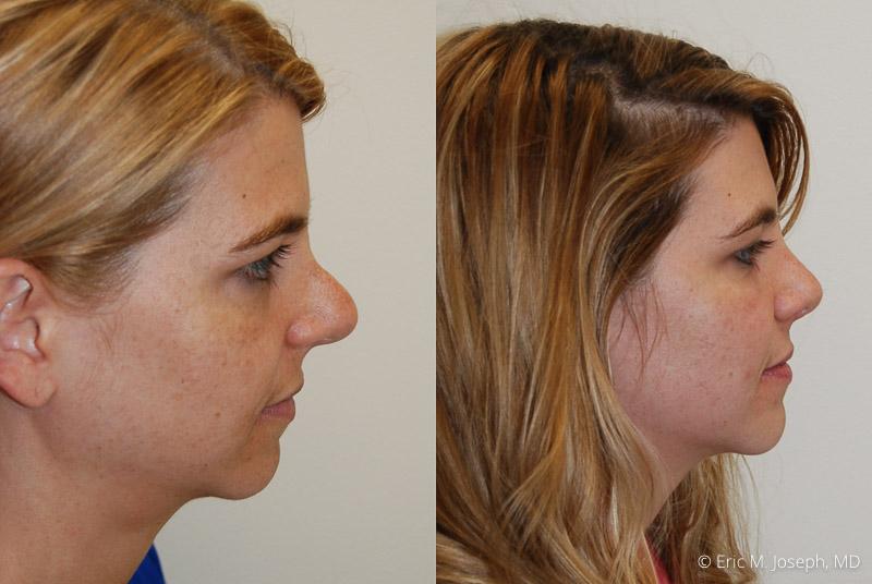 RevisionRhinoplasty-0008.jpg
