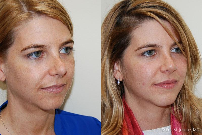RevisionRhinoplasty-0009.jpg