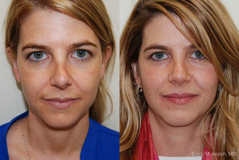 RevisionRhinoplasty-0010.jpg