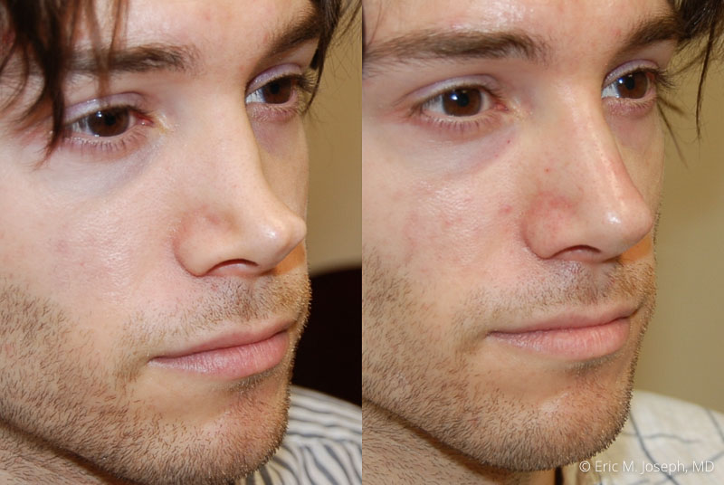 NonSurgicalRhinoplasty-0027.jpg