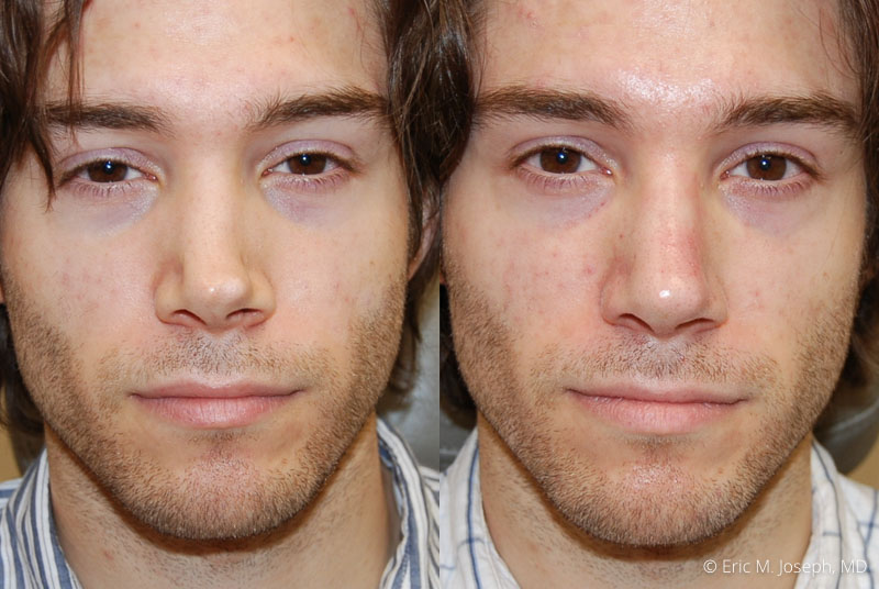 NonSurgicalRhinoplasty-0028.jpg