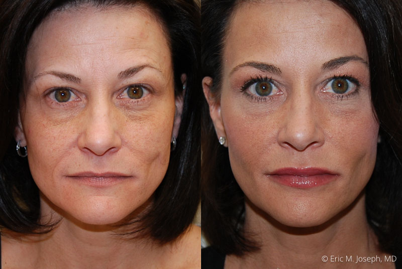 FacialRejuvenation-0001.jpg