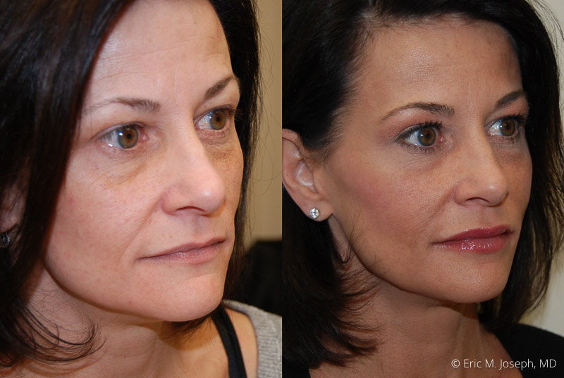 FacialRejuvenation-0002.jpg