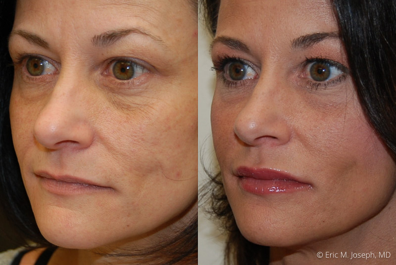 FacialRejuvenation-0003.jpg