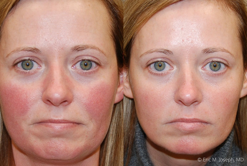 BotoxXeomin-0002.jpg