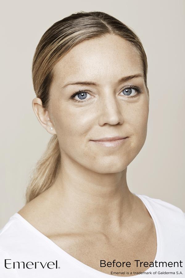 Facial treatments Taunton before & After