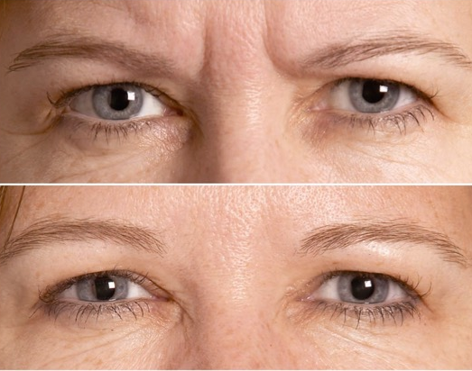Before (top) and after Botox