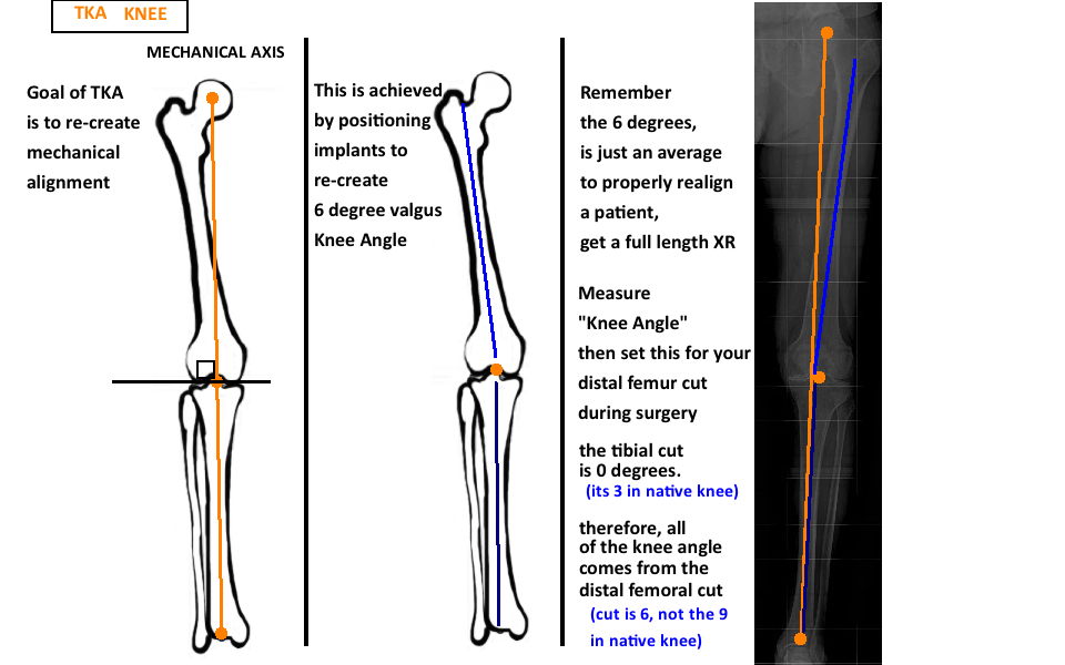 Basic Concepts Of Tka Hip Knee Book