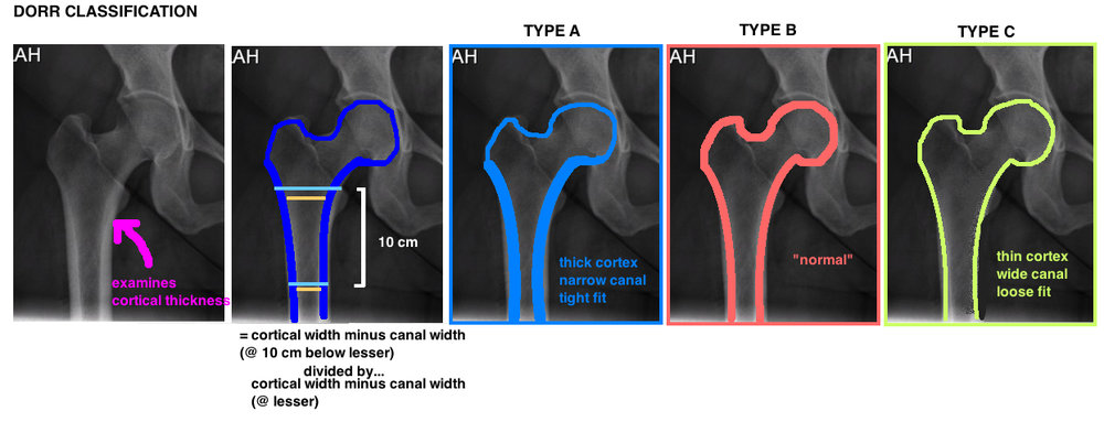 dorr classification type on xray