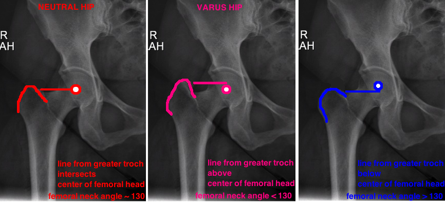 varus hip valgus hip on X-ray how to determine hip angle