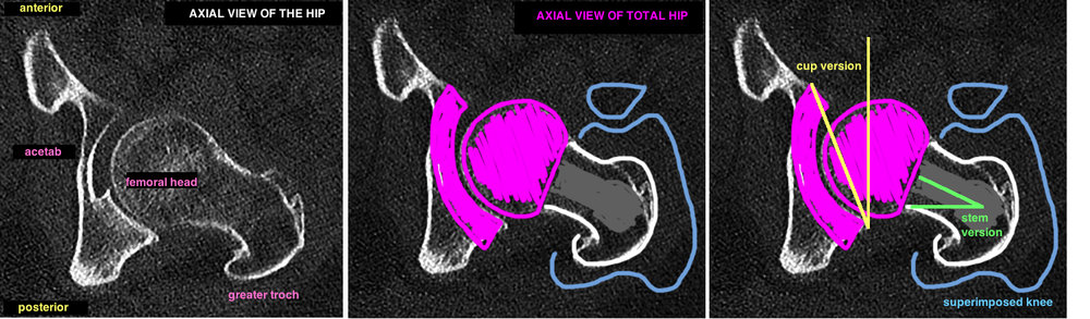 tha cup anteversion compared to femoral stem anteversion