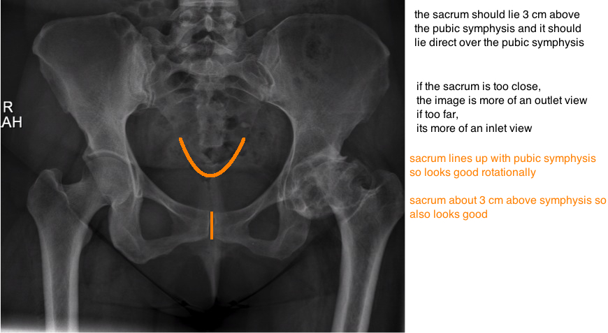 evaluating hip arthritis on xray