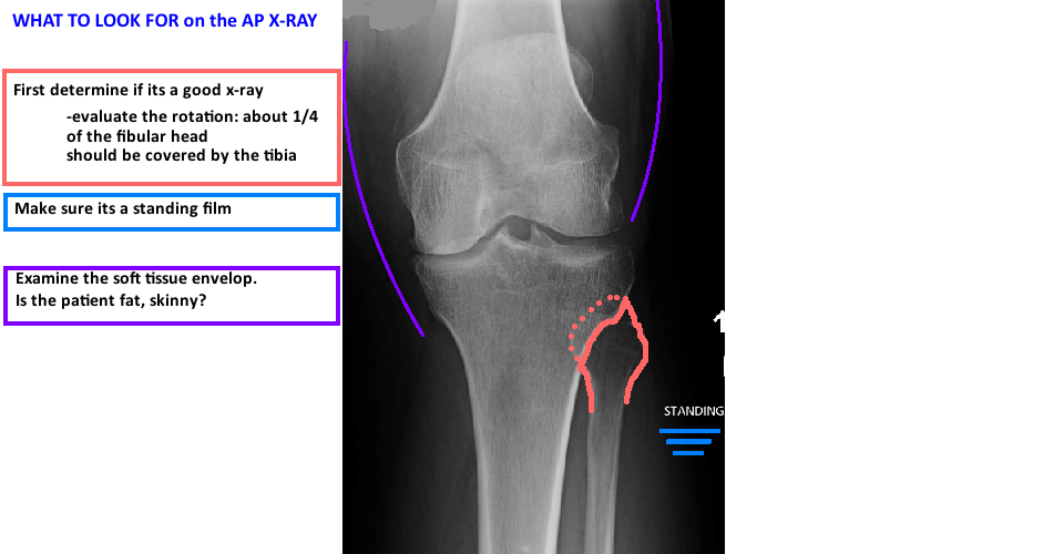 what to look for on AP x-ray of knee for tka prep planning