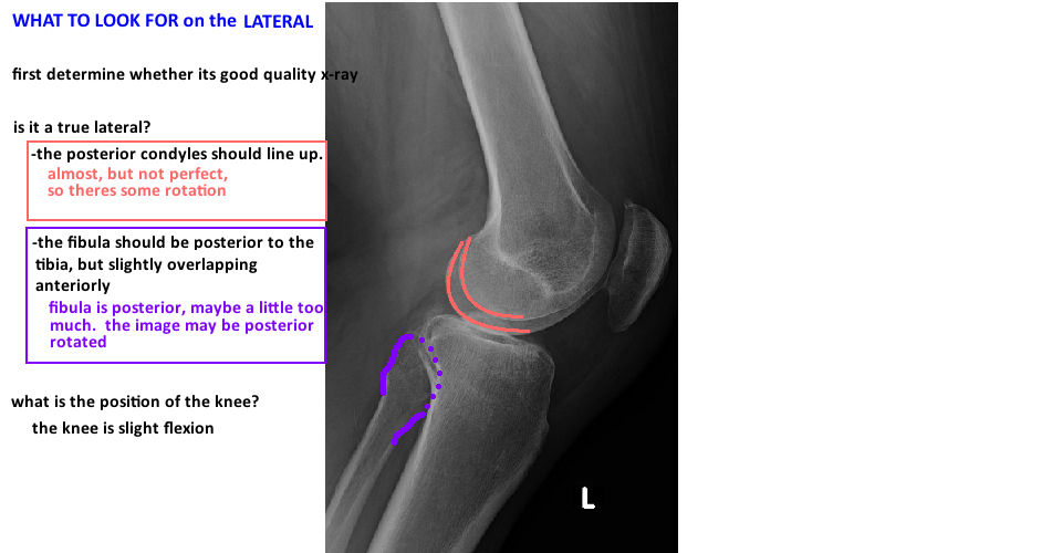 evaluate lateral knee xray for preoperative tka