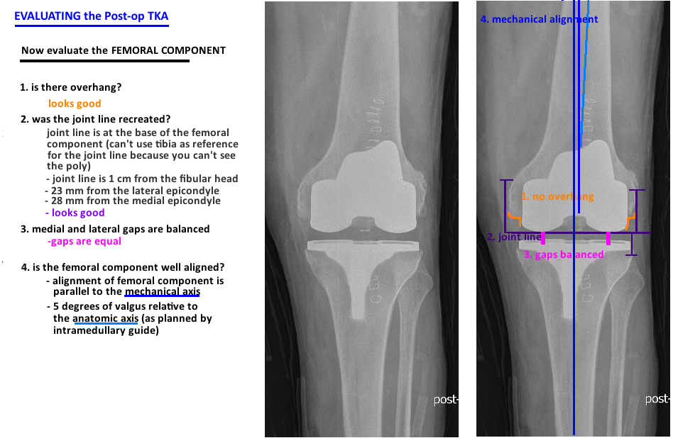 evaluate postop total knee arthroplasty looking at femur alignment