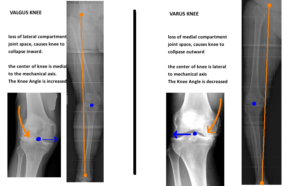 leg alignment in valgus knee and varus knee