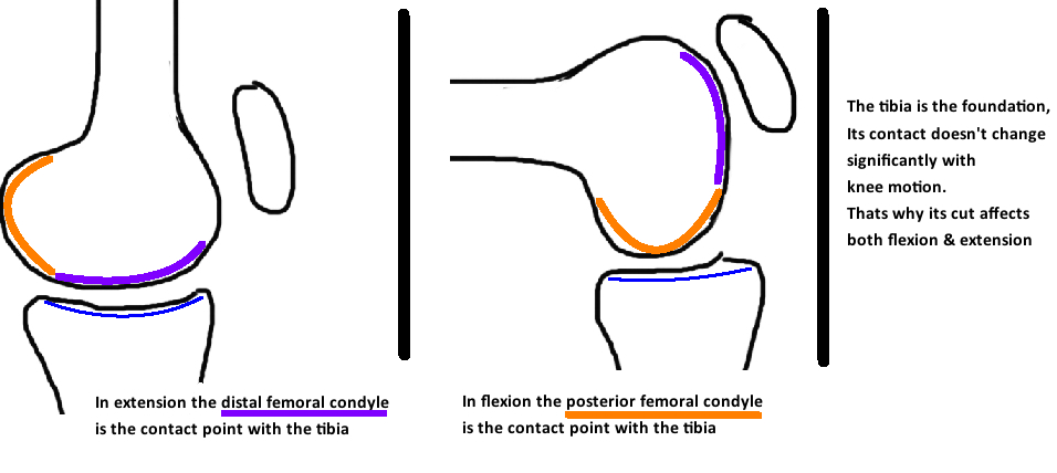 tibial cut affects flexion and extension gap for tka