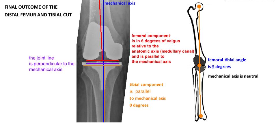 Tka Bone Cuts Hip Knee Book