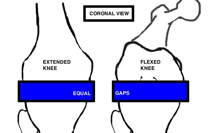 Gap Balance Soft Tissue Tension Hip Amp Knee Book