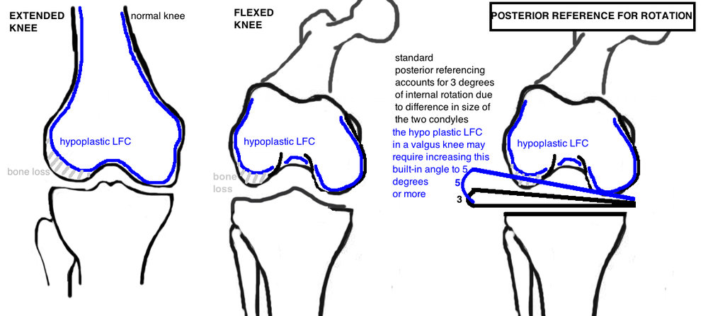 valgus tka bone cuts important considerations for valgus tka