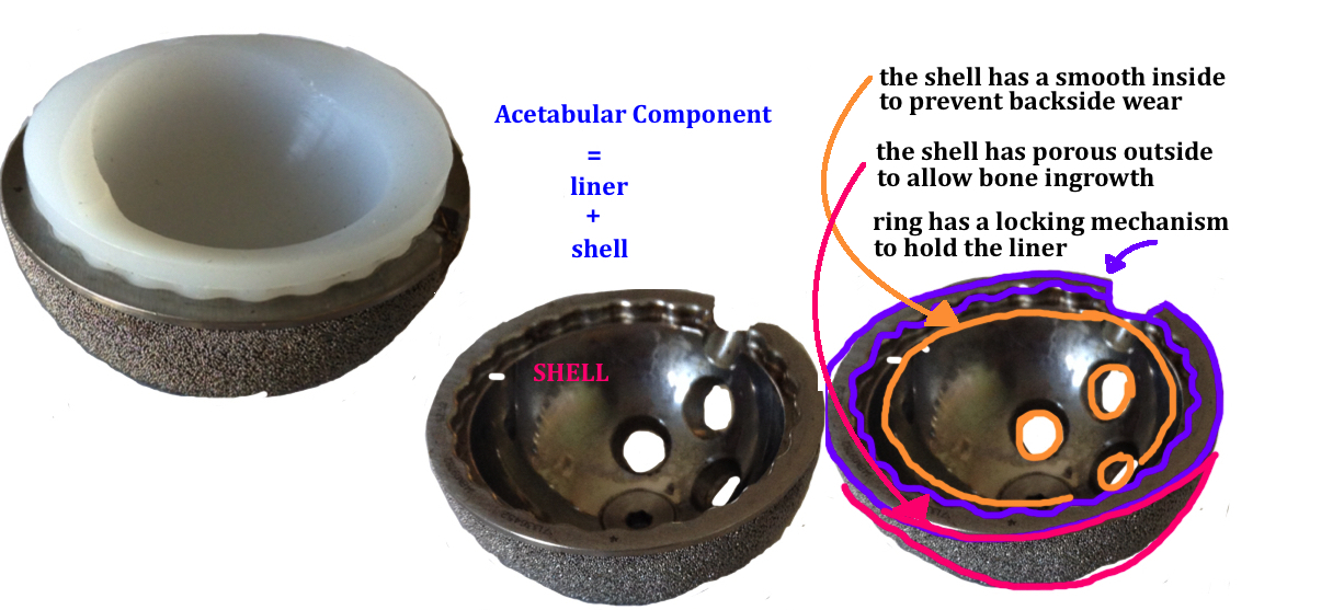 a titanium shell and polyethylene liner for the acetabular implant