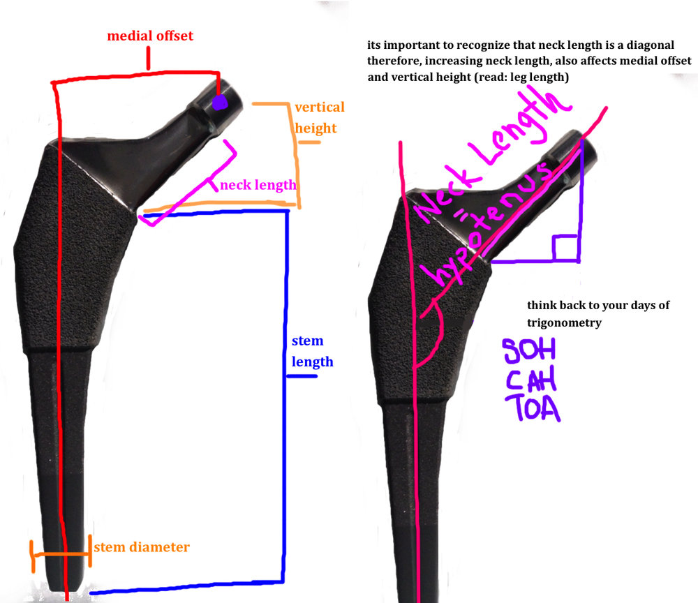 important landmarks of the femoral stem