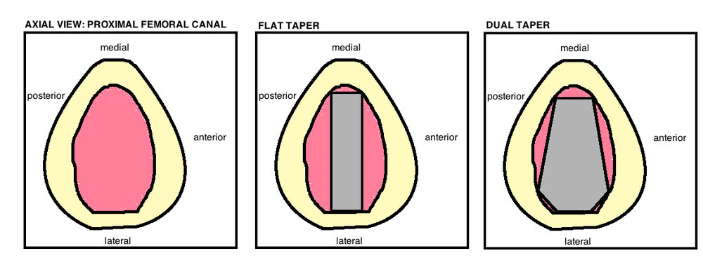 femoral stem designs