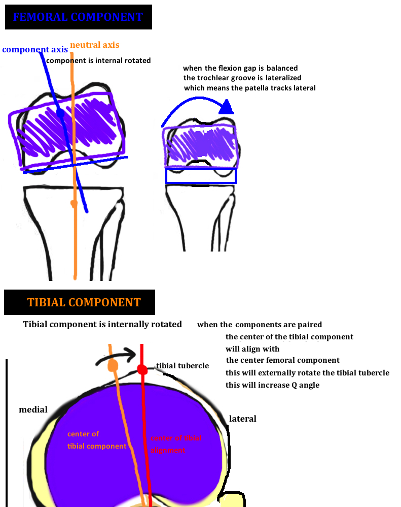 diagram showing internal rotation of the tibial component and internal rotation of the femoral component in TKA