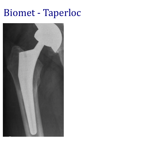 biomet taperloc.jpg
