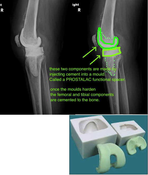 prostalac antibiotic spacer dynamic spacer for treating prosthetic joint infection