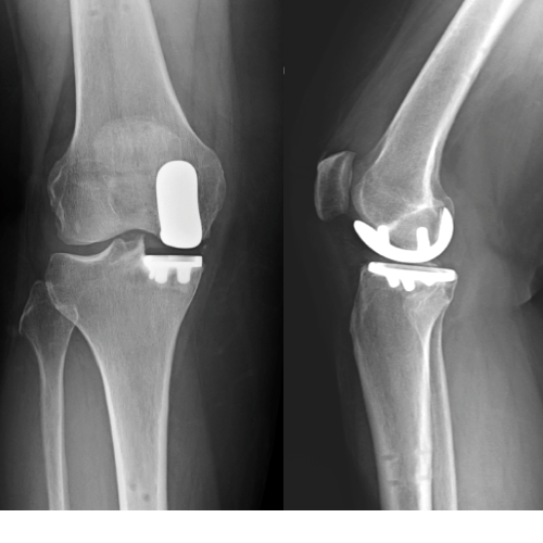 Stryker - MAKO partial knee