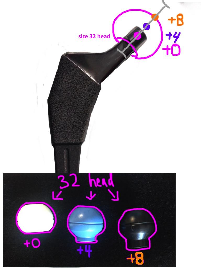 standard femoral head lengths