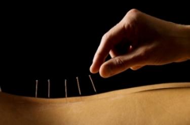 Decatur Acupuncture