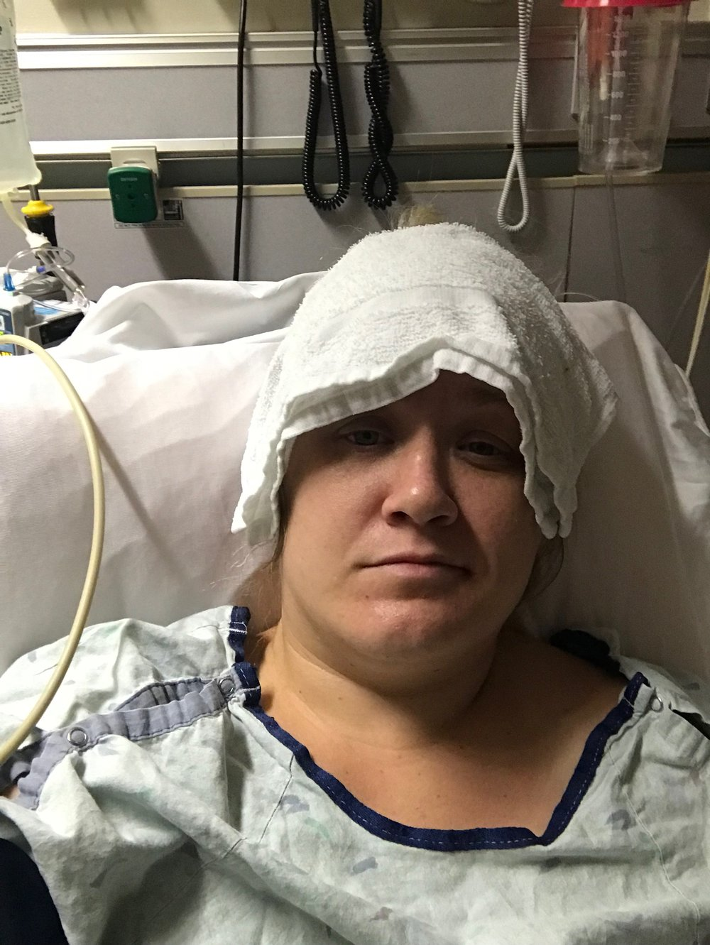 Aaaannd…. Here I am in the ER. I've just had an IV inserted and they pushed pain and nausea meds. In the photo I'm trying not to pass out, hence the cold towel on my head. About 11 hours later I would have it surgically removed.