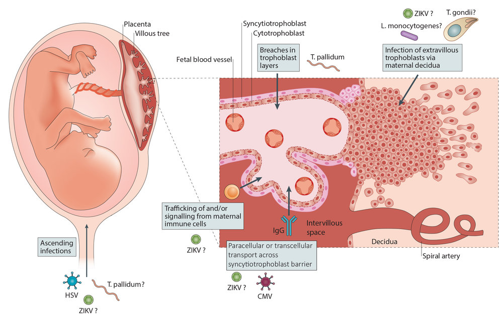 mechanisms of microbial invasion into the fetal compartment (modified from  coyne & lazear 2016 nat rev micro )