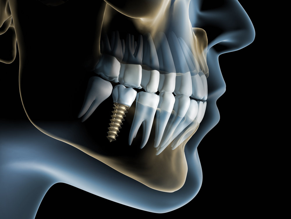 Implants and implantologist at tooth dental surgery in Waterloo, London