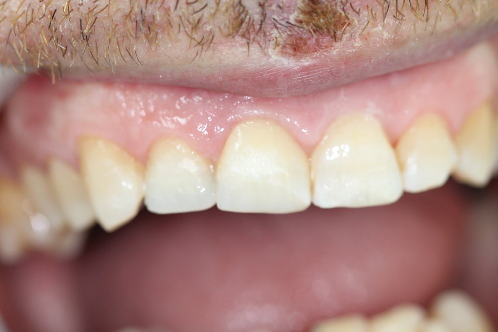 Chipped teeth after treatment